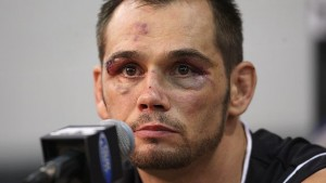 rich franklin's eye